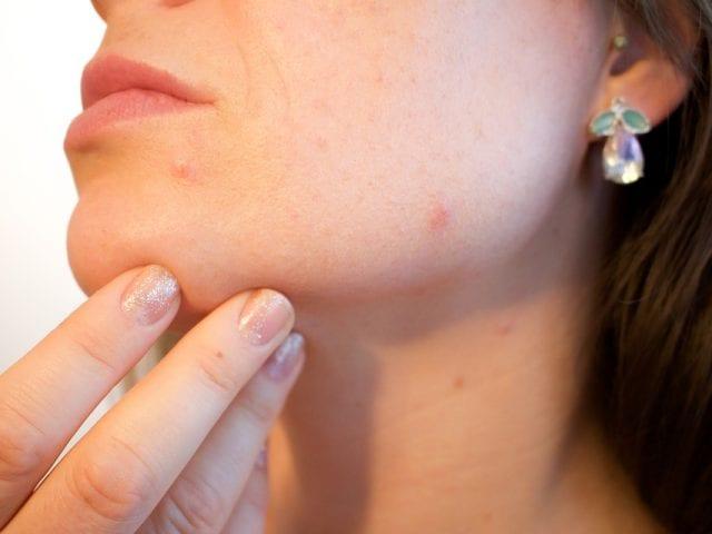 Появление и лечение прыщей на лице у женщин в возрасте 30–35 лет