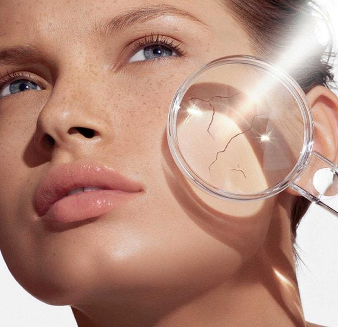 Сухая кожа у женщин в возрасте 30–35 лет