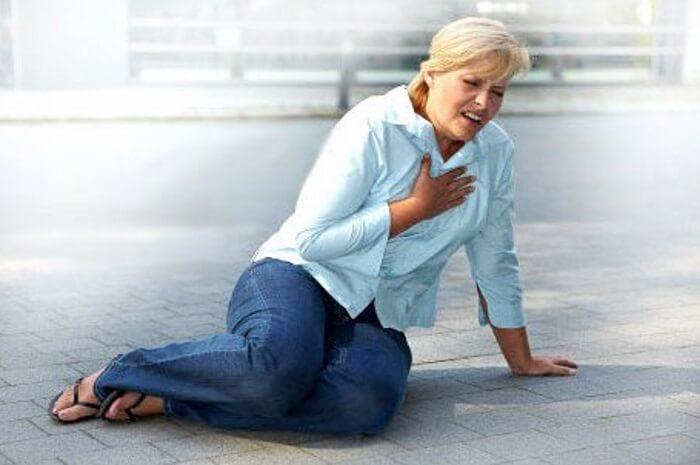 Инфаркт у женщин в возрасте 50 — 55 лет