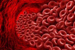 Высокий гемоглобин у женщин 50 лет
