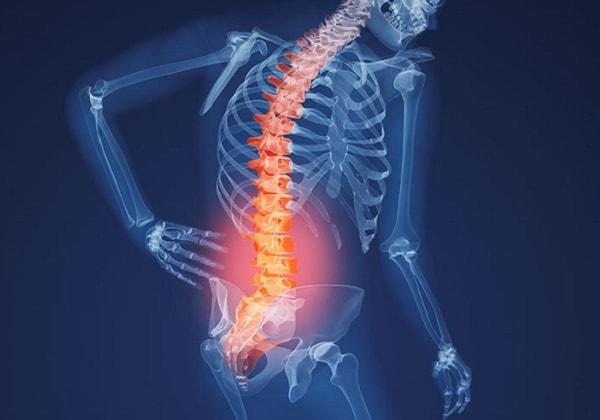 Какие симптомы остеопороза