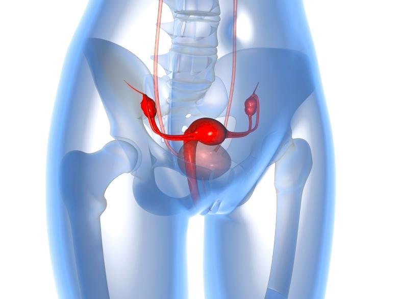Удаление матки в 50 — 55 лет: миома