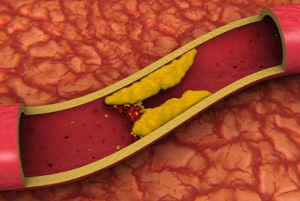 Чем вреден холестерин