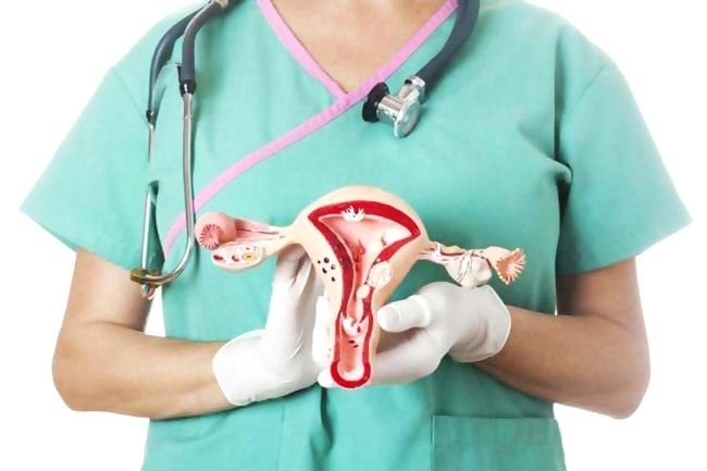 Нюансы эндометриоза