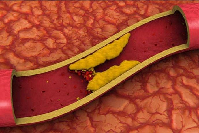 Холестерин для женщин в 50 — 55 лет